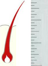 Длина волос при депиляции